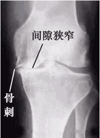 足跟骨刺_骨质增生的概述-百济新特药房网