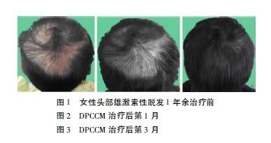 女性脱发的临床疗效观察