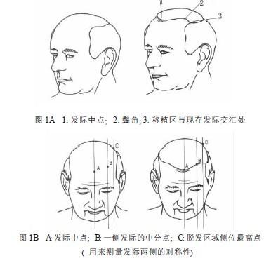 卵圆形打孔器毛囊移植技术的临床应用